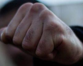 Молодику, який побив свого знайомого у Василькові, повідомлено про підозру