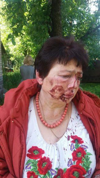 Свавілля у Приірпінні: парламентська ТСК проведе додаткове засідання щодо нападів на активістів