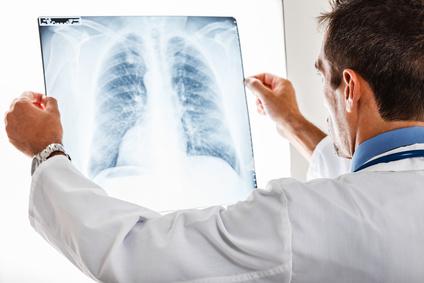 До Дня боротьби з туберкульозом у Броварах працюватиме пересувний флюорограф