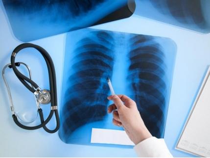 28153_1 Кого туберкульоз вражає на Обухівщині