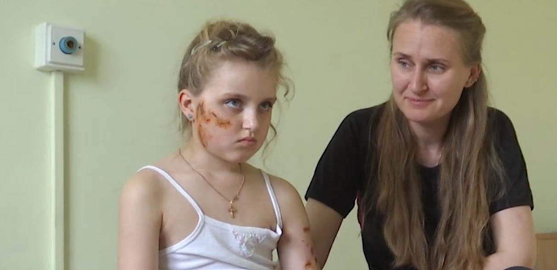 У Вишневому знайшли пса, який пошматував обличчя дитини - дівчинка - 67896