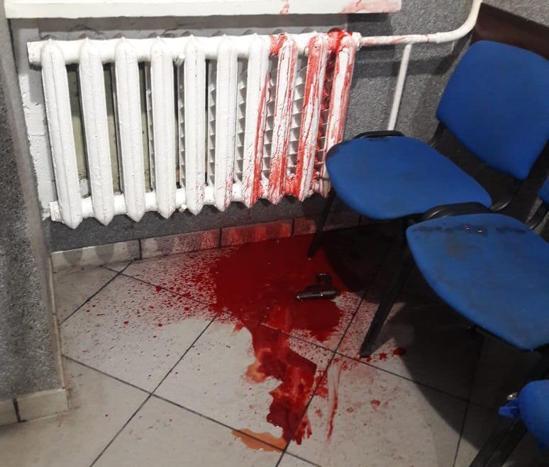 Несподіване самогубство: в Ірпені 19-річний житель Гостомеля, який стріляв у свою колишню, покінчив із собою на очах у поліцейських -  - photo 2019 07 16 10 56 35