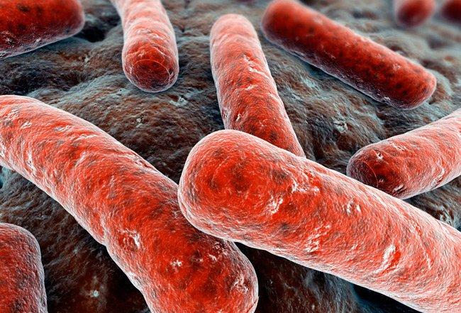 large-preview-1347043198_tuberculosis-001 Австралійські вчені розробили вакцину, яка здатна захистити від туберкульозу на все життя