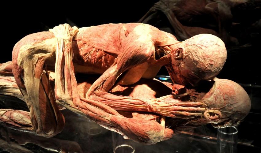 Анатомічна виставка Ґунтера фон Гаґенса «Всесвіт тіла» триватиме у Києві до грудня -  - ujaccndpztcw4gz2mqb0
