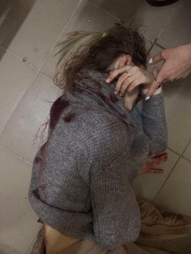 У Києві злочинець завдав дівчині 17 колотих ран, його розшукує поліція -  - 81489710 3097404943818761 146902948268474368 n
