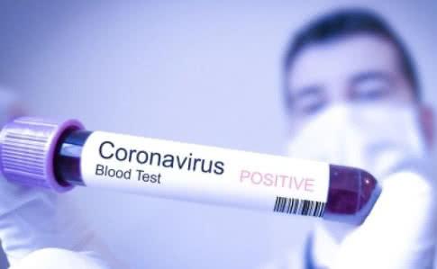 В Україні – 41 підтверджений випадок зараження коронавірусом - МОЗ України, коронавірус, зараження - 1f386d4 0