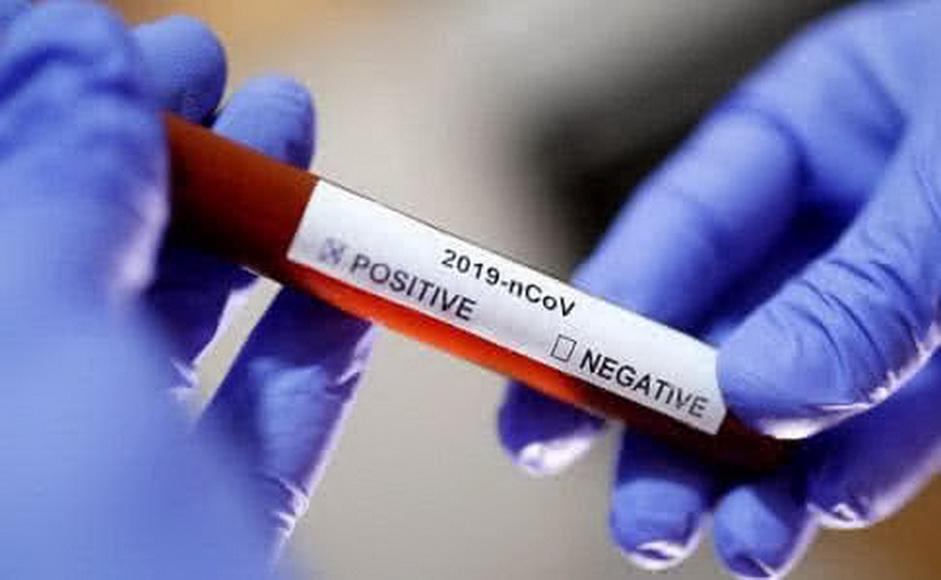 В Україні підтверджено ще 2 нові випадки зараження коронавірусом - коронавірус - 71268dd coronavirus test