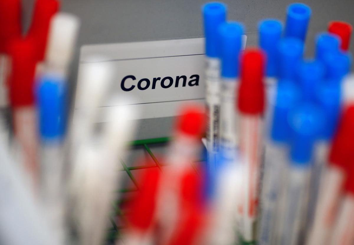 В столичній області підтверджено 216 випадків зараження COVID-19 -  - 1585321029 2266