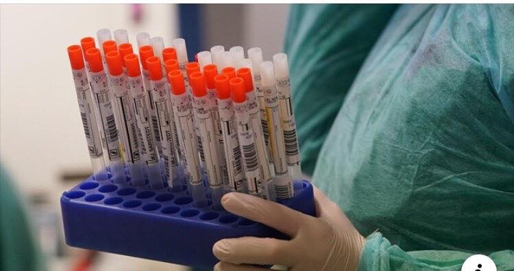 Два нові випадки зараження на коронавірус у Бучі: стан подружжя задовільний - Приірпіння, Медицина, коронавірус, київщина, Бучанська ОТГ, Буча - Bucha koron 1
