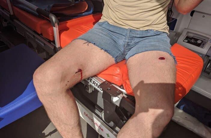 У Княжичах на Броварщині стався озброєний конфлікт: є поранений - Княжичі, Броварський відділ поліції - 103399674 1334531833424088 6969907403028234736 n