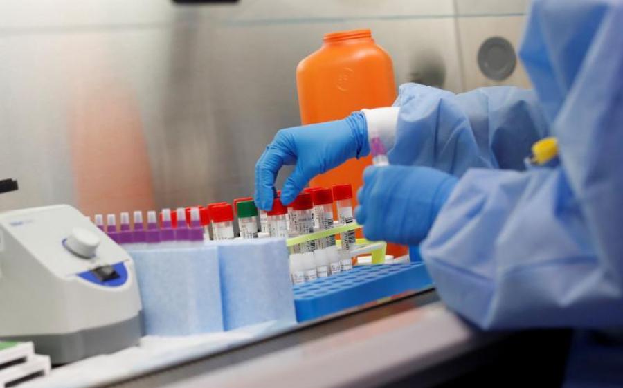 За час пандемії на Київщині  померло 46 хворих на COVID-19 -  - 59b2516eb3b9dbe2dc3add4947037456 XL