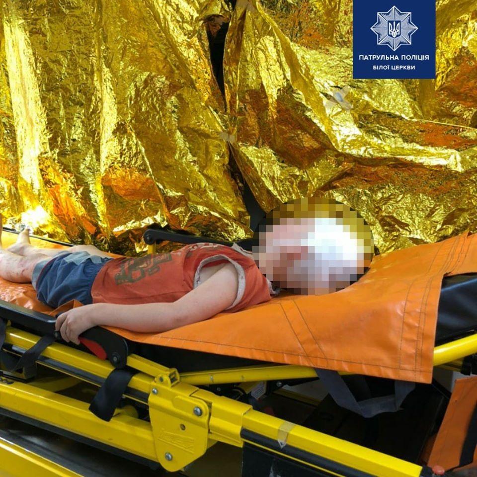 У Білій Церкві співмешканець жінки викинув її 5-річну дитину з вікна - Біла Церква - 83185354 1690993614401025 4128851676812437812 o