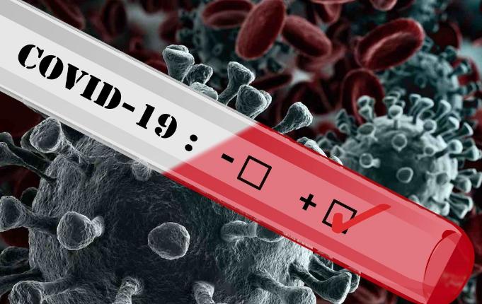 На Броварщині 7 нових випадків захворювання на COVID-19 за минулу добу