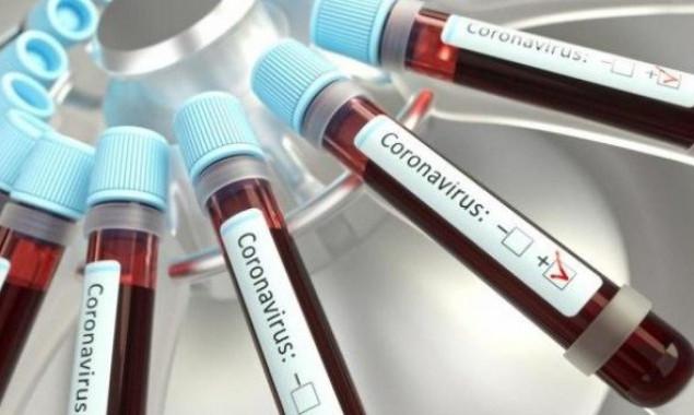 COVID-19 на Броварщині: 7 випадків захворювання за минулу добу