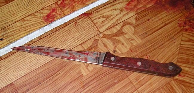 Ножове поранення на Васильківщині: жінка в реанімації -  - 118290655 763149951114909 5886451020368019287 n
