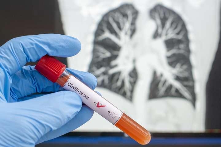 Львівщина лідирує по кількості хворих на коронавірус -  - 26 main