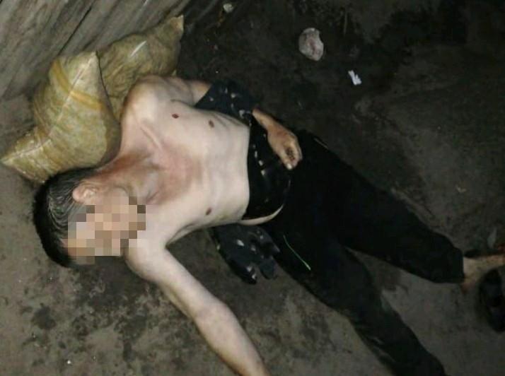Ірпінь: жінку затримали за підозрою у вбивстві чоловіка (ФОТО 18+) - ірпінь, жінка - IMG a404af552a7793a5779121a0cb9982a9 V