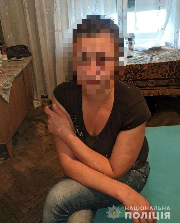 Криваві пристрасті: у столиці жінка ледь не зарізала  співмешканця - ніж, вбивство - 119588455 3293705604018521 8778572360168218447 n