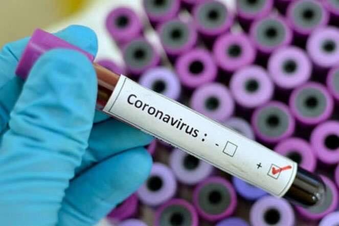 270 броварчан хворіють на COVID-19