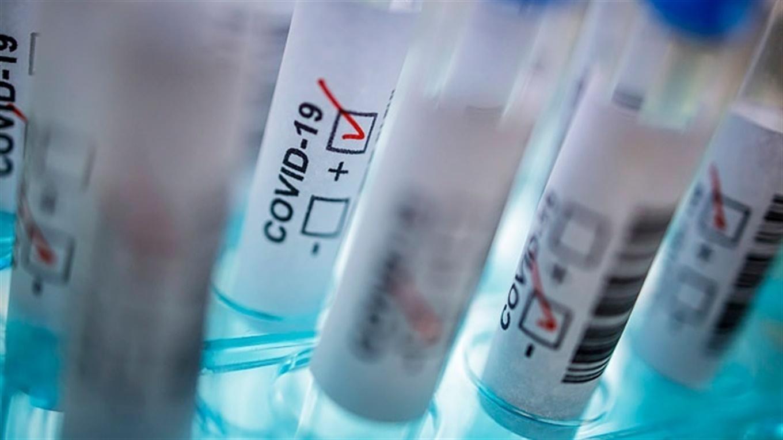 В Україні за добу виявили понад  5728 нових хворих на COVID-19 - коронавірус - vflBzryF2Yogy1Z4kBc9