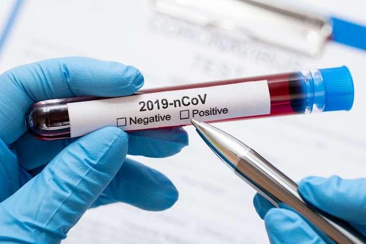 У Броварах на COVID-19 хворіє 793 особи - коронавірус, Броварська міська рада, Броварська лікарня, COVID-19 - covid 19