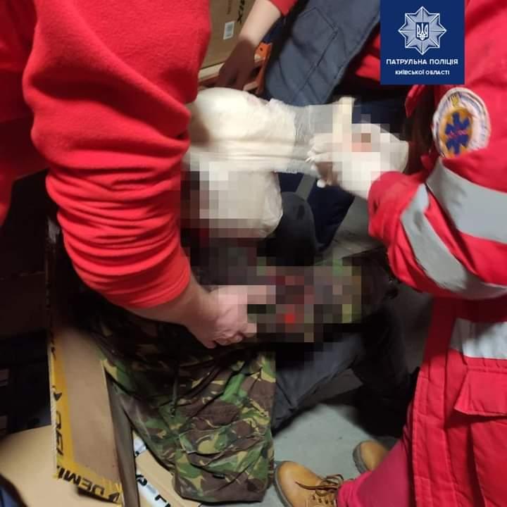 Порізали обличчя і шию: інцидент у Києво-Святошинському районі - Чайки, Порізи, Поліція, напад - FB IMG 1609856629403