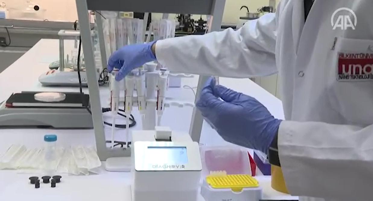 Виявити коронавірус тепер можна за 10 секунд - розробка, коронавірус, дослідження, вчені - Snymok ekrana 824