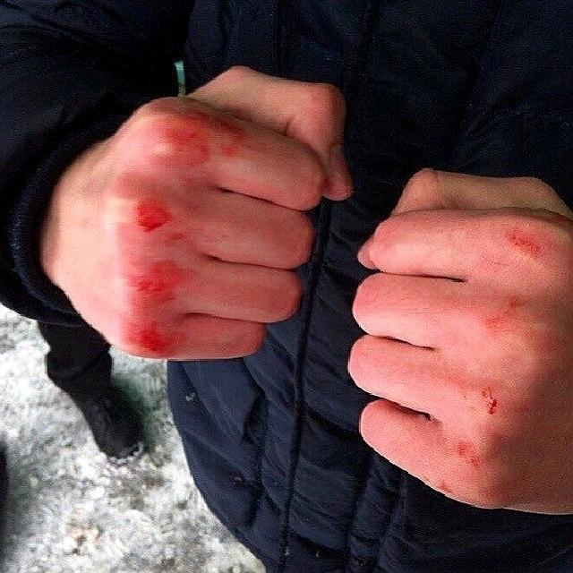 На столичному Печерську побили журналістів  «Радіо Свободи» - травми, побиття, Журналісти - img 66