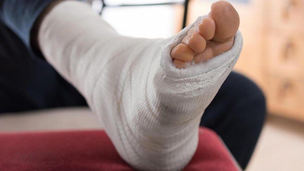 В Переяславі через ожеледицю травмувалися 19 людей за один день - травми, Переяслав, лід - 1547839436  104211155 p06mxrc7