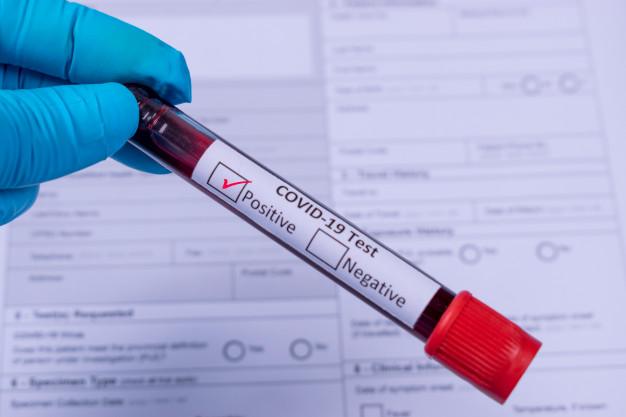 COVID-19 у світі та Україні: статистика на 20 лютого - статистика COVID-19, коронавірус, захворюваність, зараження - covid 19 infected blood sample tube in hand a positive coronavirus infected blood sample test 101840 552